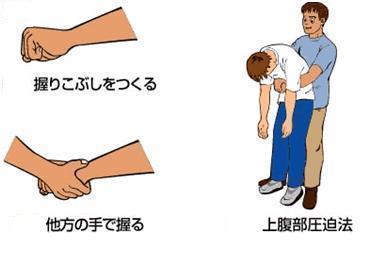 ハイムリック法のイメージ